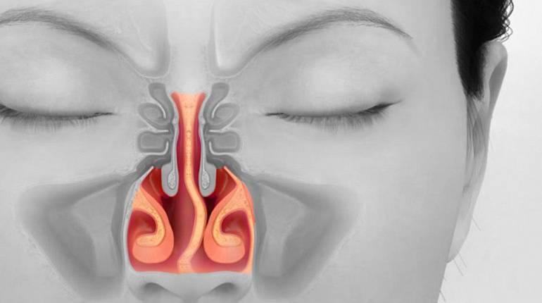 перегородки носа