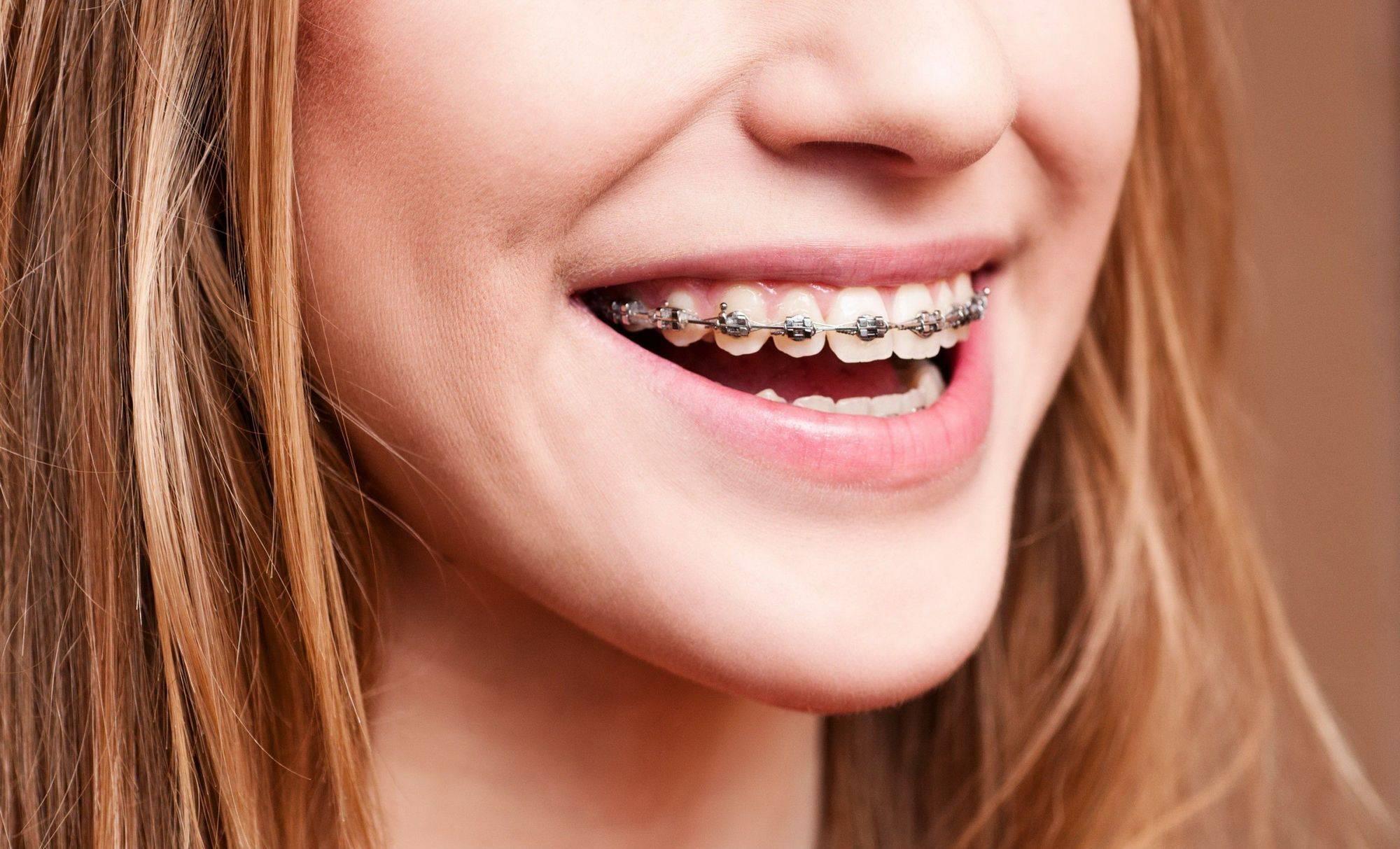 Металлические лигатурные брекеты в москве - цены от 1450 рублей, адреса стоматологий, отзывы пациентов