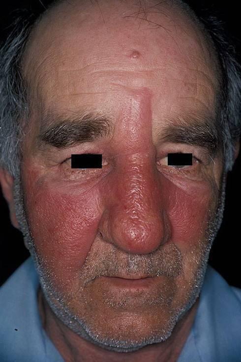 Стрептококковая инфекция: в горле, во рту, на коже, у детей. фото