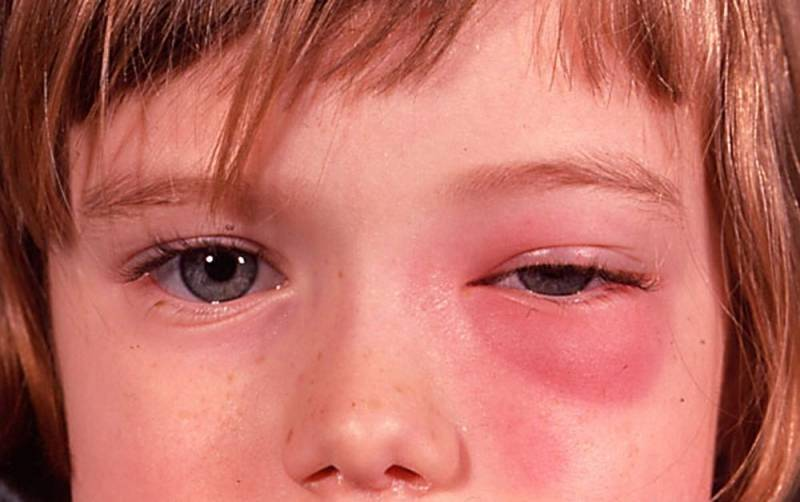 опухли глаза у ребенка
