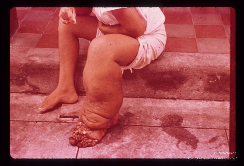 Лимфостаз (лимфедема) ног и рук: причины и развитие, формы, симптомы, как лечить