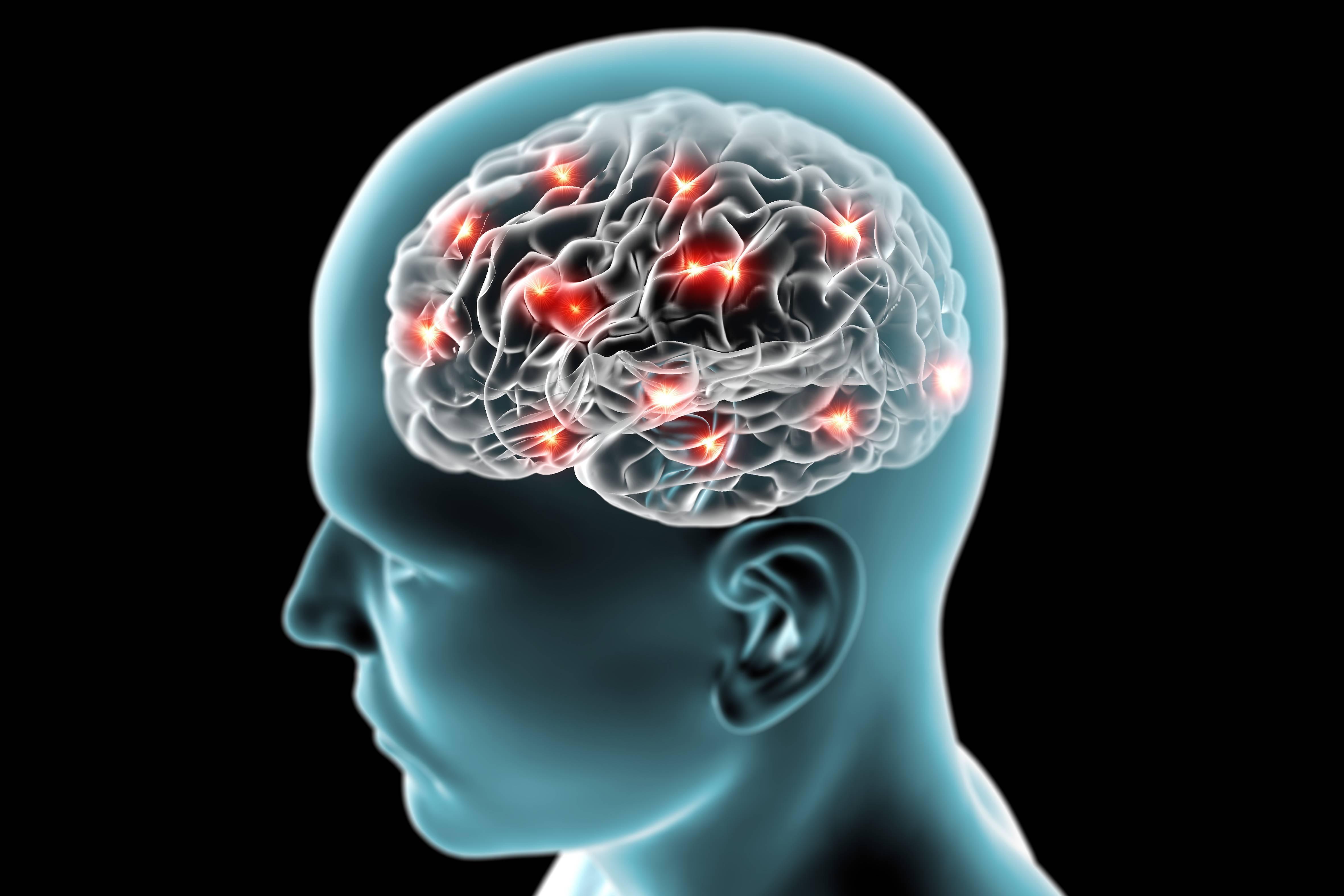 энцефалопатия алкогольная симптомы