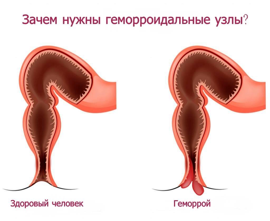 воспаление геморроя симптомы