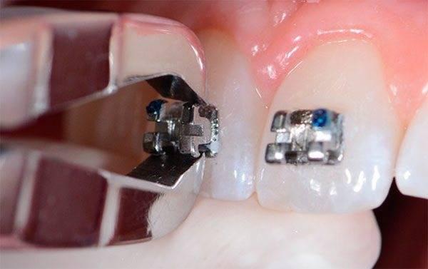 Можно ли делать мрт с брекетами на зубах