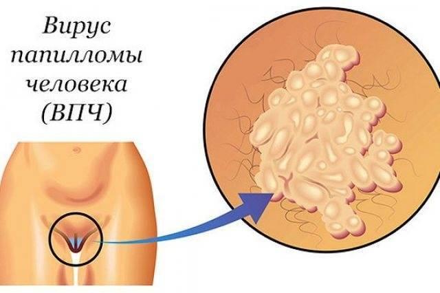 рецидив генитального герпеса при беременности
