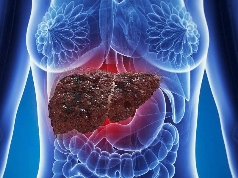Ожирение печени: симптомы, лечение и профилактика