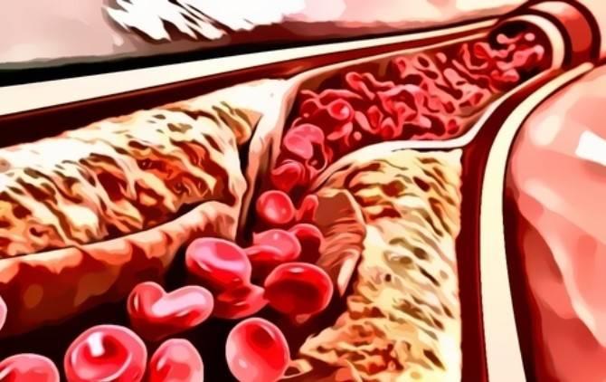 Что означает повышенный холестерин лпнп?