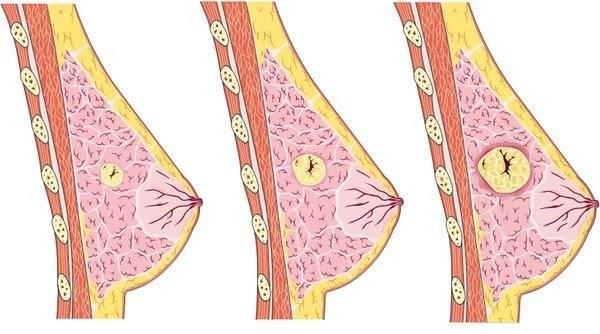Диффузная мастопатия: понятие и лечение в домашних условиях