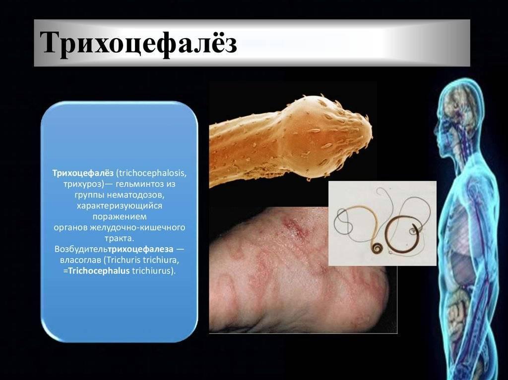 Трихоцефалез у детей - симптомы болезни, профилактика и лечение трихоцефалеза у детей, причины заболевания и его диагностика на eurolab