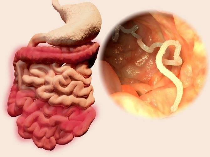 Симптомы паразитов в организме человека – признаки инвазии