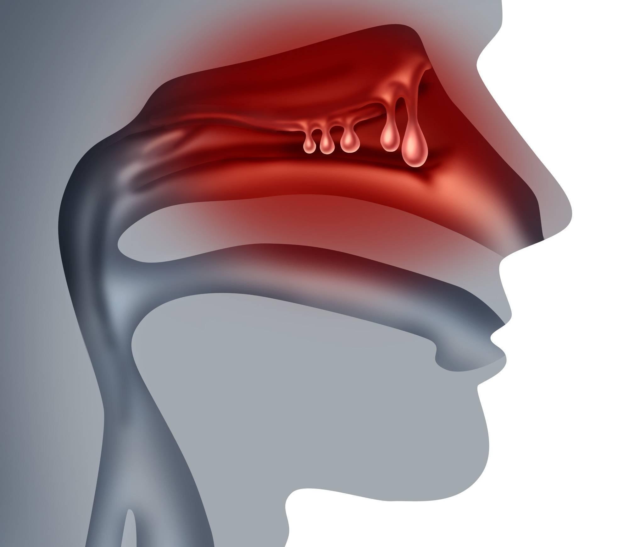 Гипертрофический ринит: симптомы и лечение