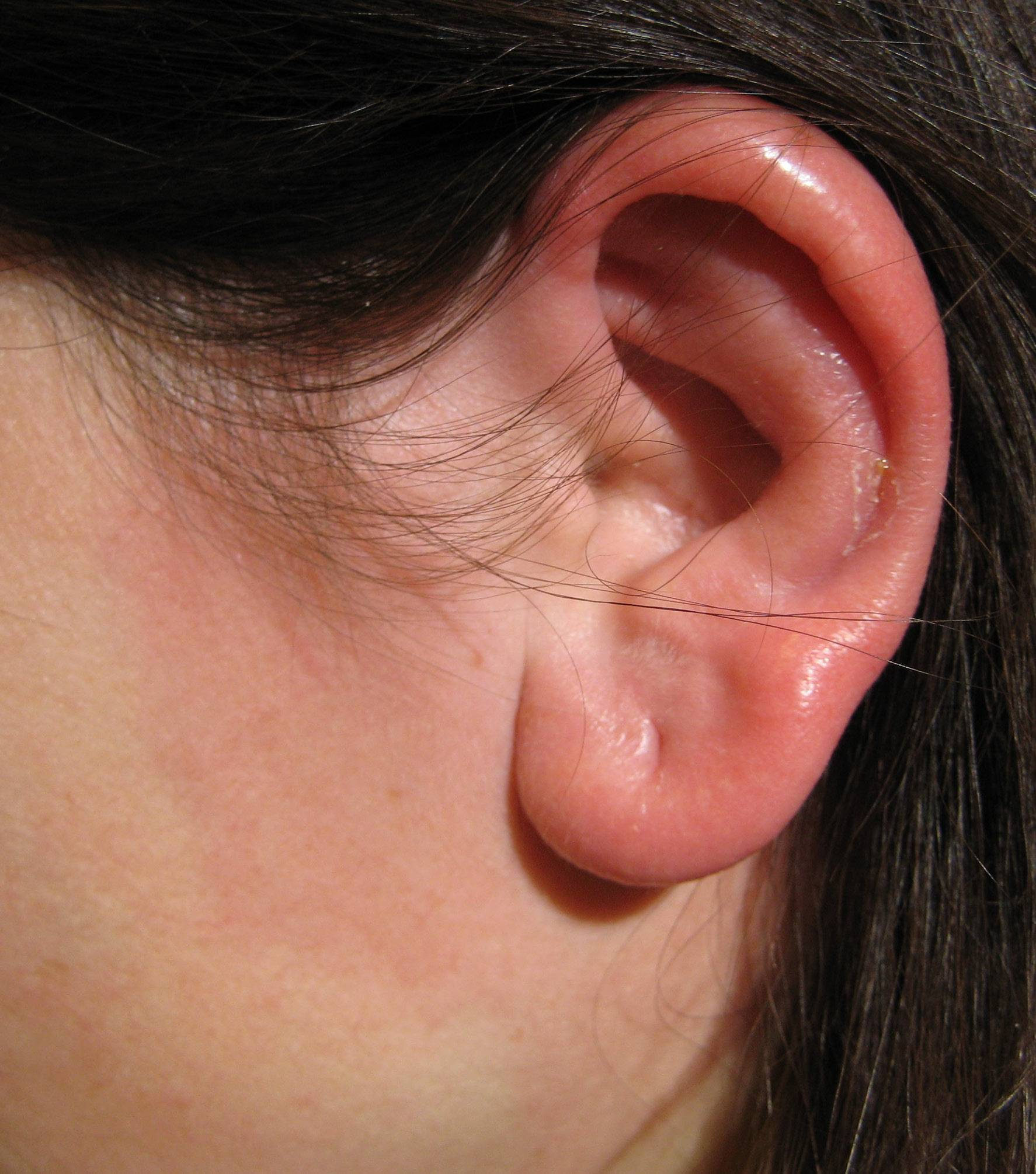 Перихондрит ушной раковины — симптомы и лечение хондроперихондрита 2019