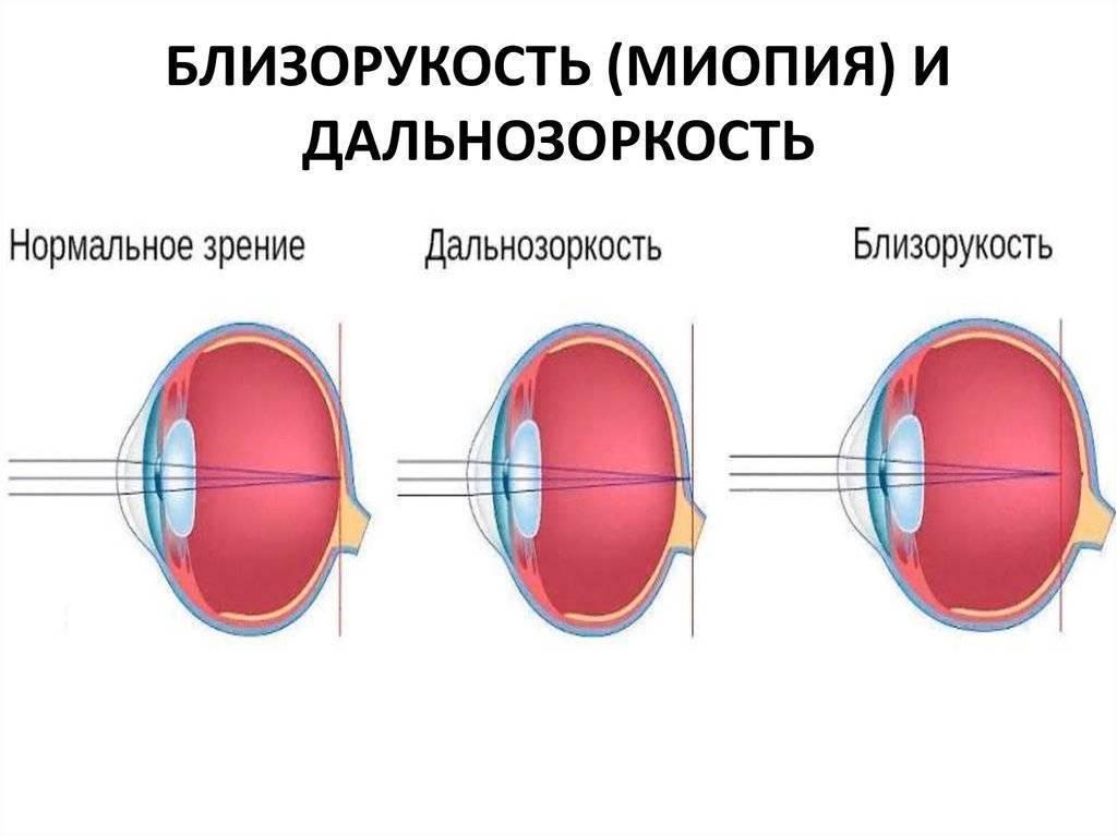 Что лучше близорукость или дальнозоркость - лечение глаз