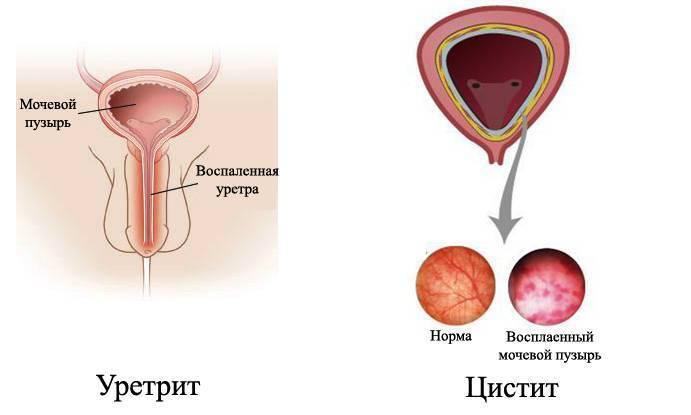 чем отличается цистит от уретрита у женщин