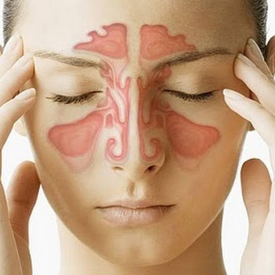 последствия хронического гайморита