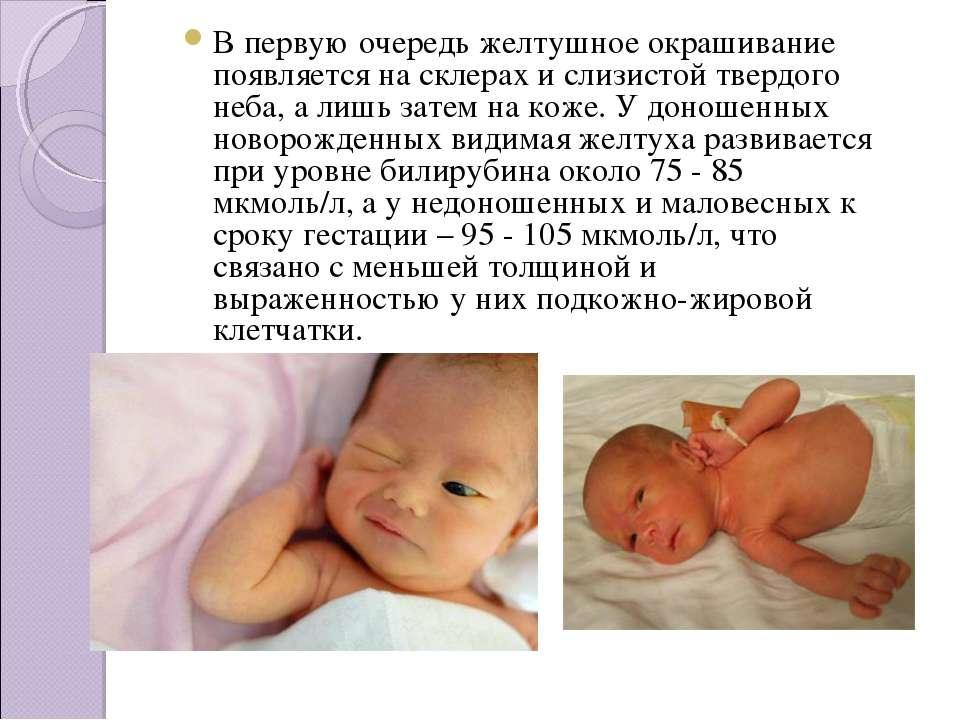 Желтушка у новорожденных – причины и последствия физиологического и патологического пожелтения кожи
