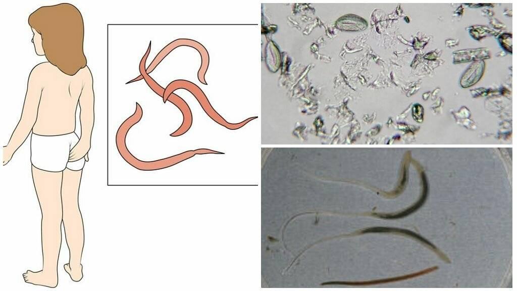 как влияют паразиты на организм человека