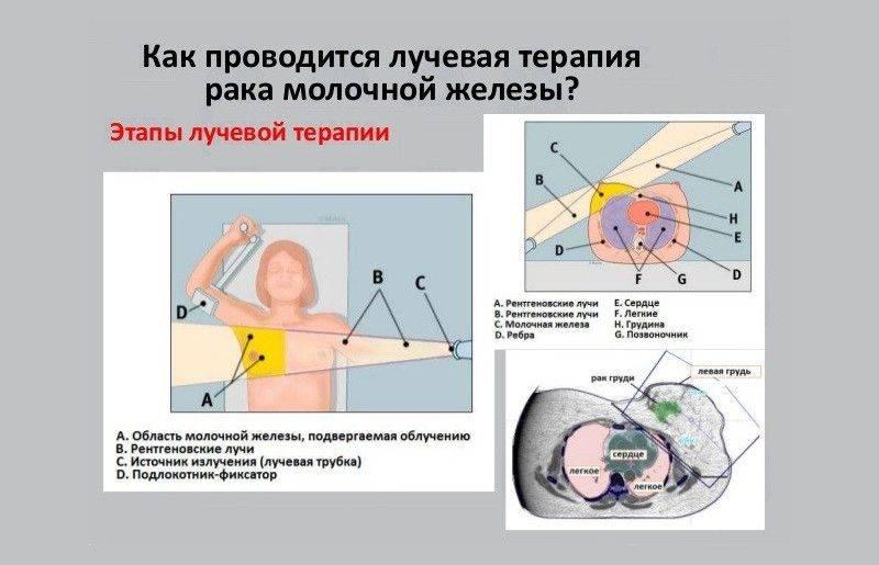 Лучевая терапия при раке молочной железы: последствия облучения, реабилитация и питание