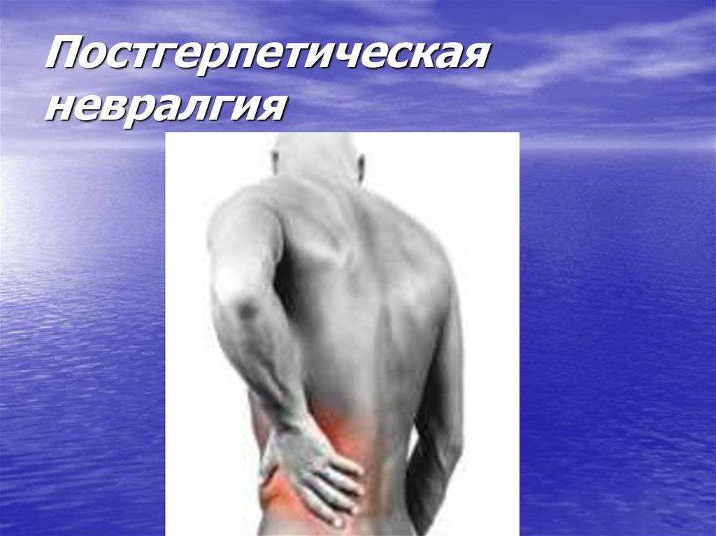 Особенности течения, терапии и профилактики постгерпетической невралгии