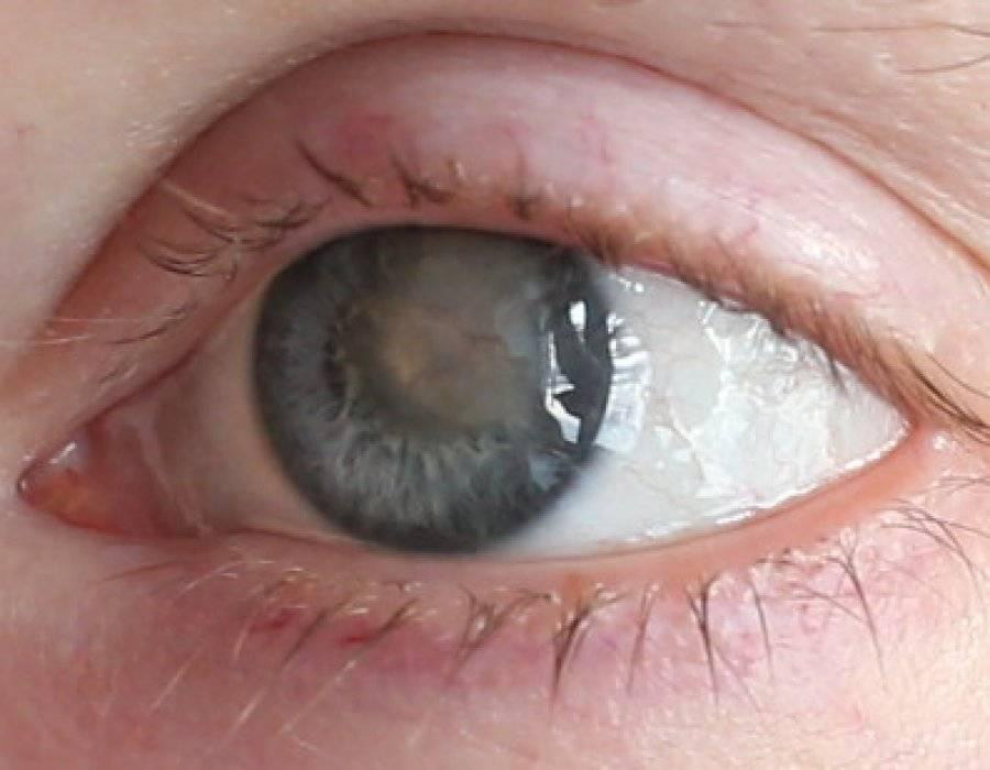грибковые заболевания глаз симптомы
