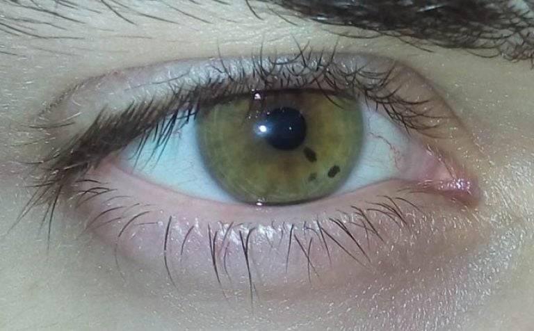 черная точка в глазу
