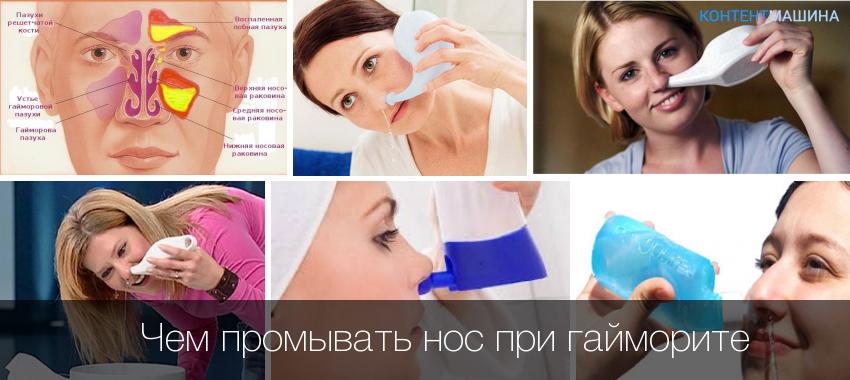 Чем промывать нос при гайморите - подбираем хороший раствор для промывания