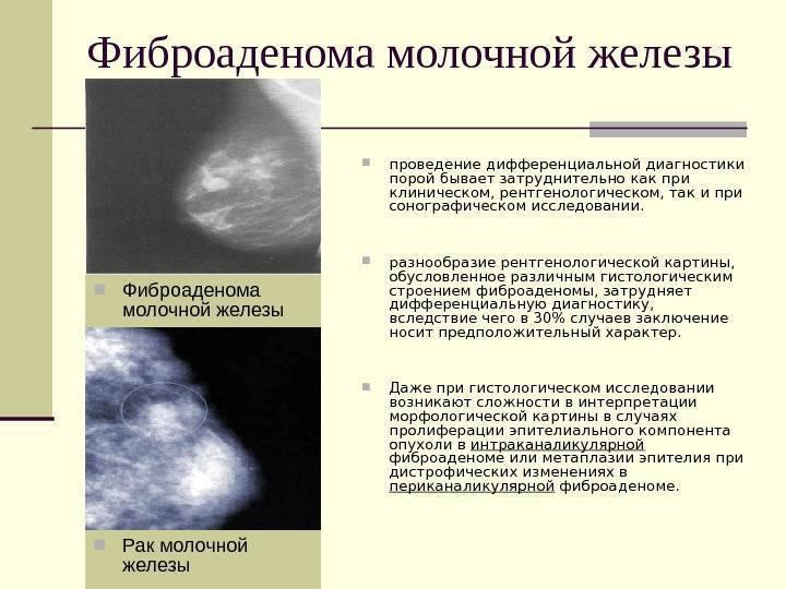 Фиброаденома молочной железы: симптомы
