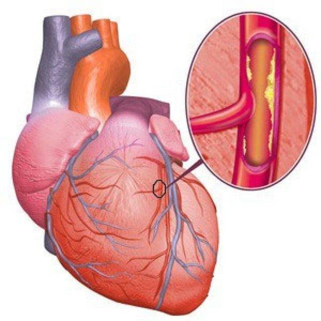 Что такое атеросклероз аорты брюшной полости: его признаки, последствия и методы лечения
