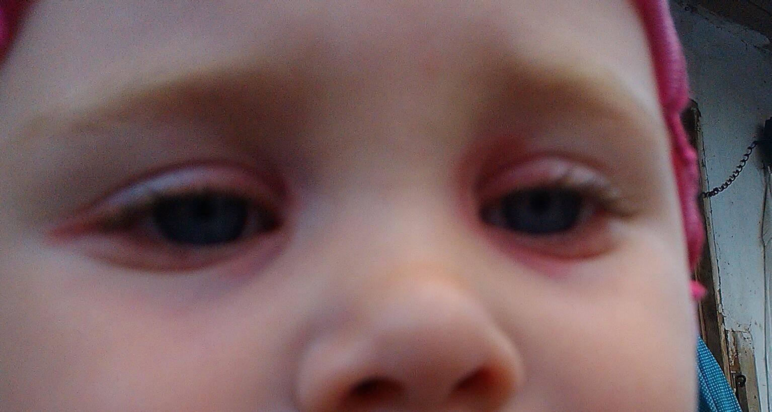 покраснел глаз у грудничка