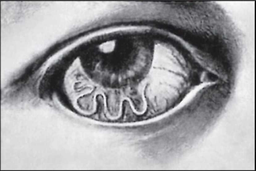 Паразиты и глисты в глазах у человека: причины появления и как избавиться