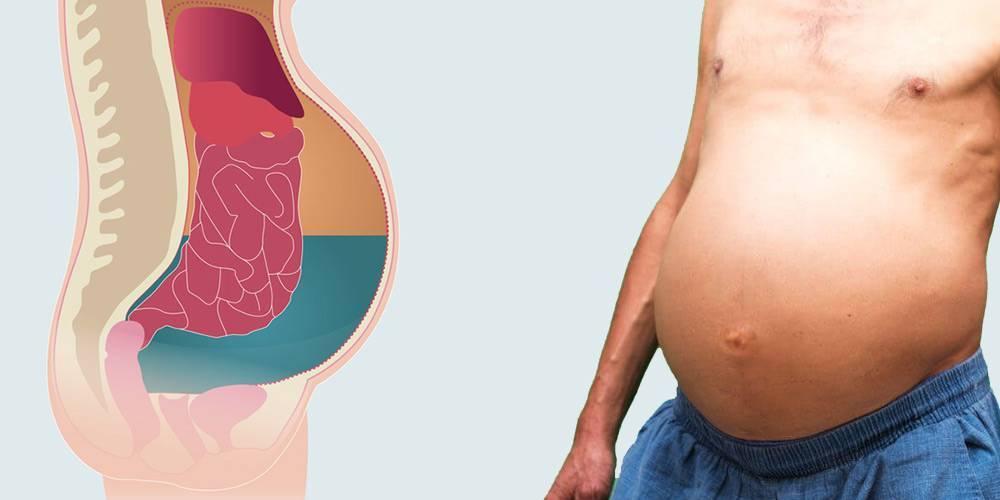 Отек легкого. симптомы, механизм развития, причины, диагностика, лечение болезни. :: polismed.com