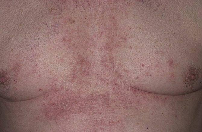 Солнечный дерматит на лице