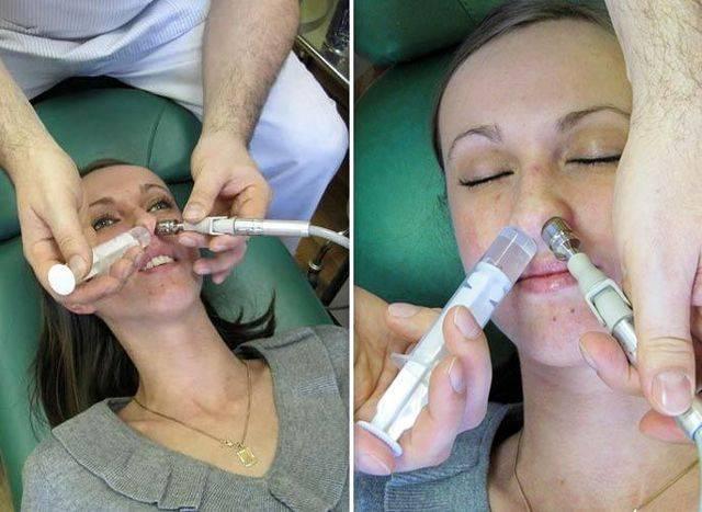 Как вылечить гайморит без прокола. что поможет побороть недуг