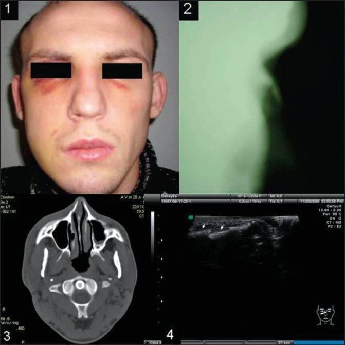 Признаки сломанного носа  — первая помощь, реабилитация