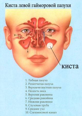 Киста в пазухе носа: симптомы, лечение кисты в носу, удаление