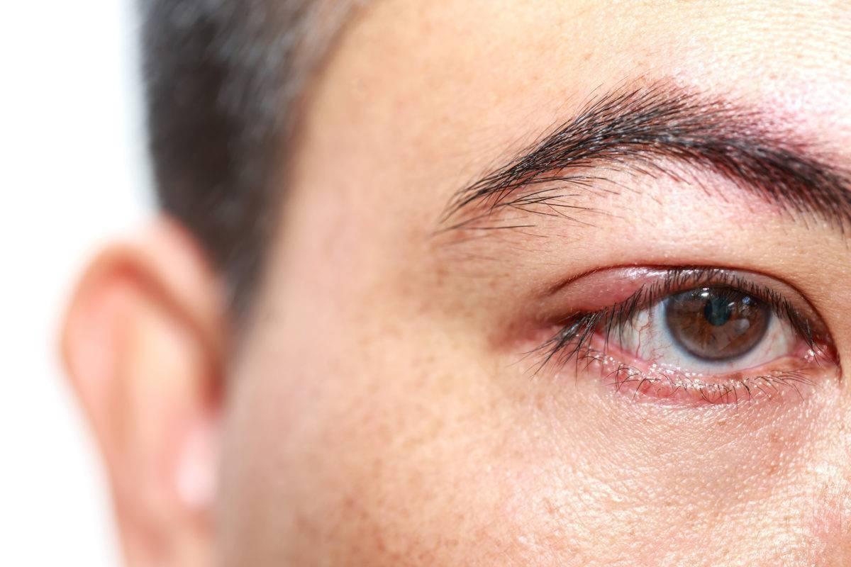 Фурункул (чирей) на глазу