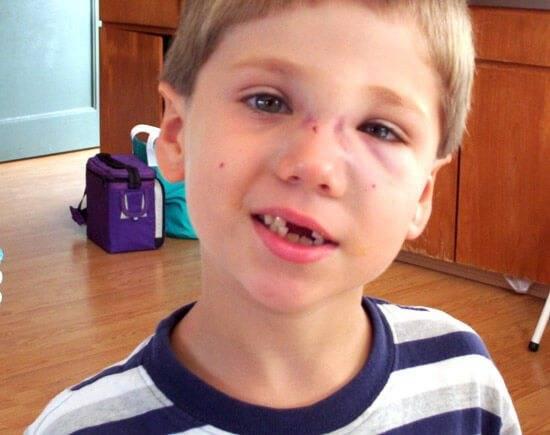 как снять отек слизистой носа у детей