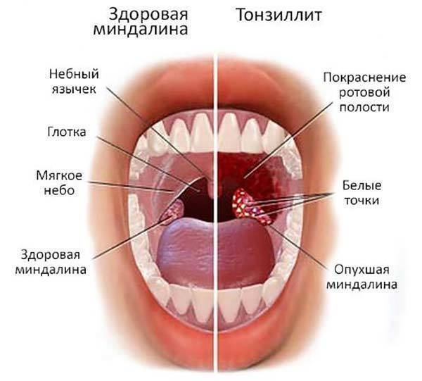 Сколько дней держится температура при ангине и стоит ли ее сбивать