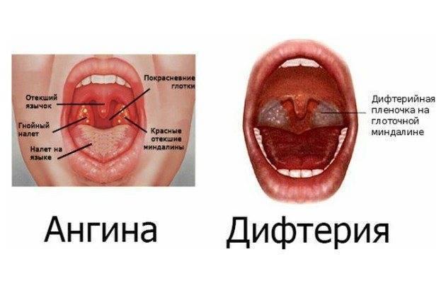 Как отличить ангину от гриппа — по каким симптомам и признакам. отличия ангины от орви