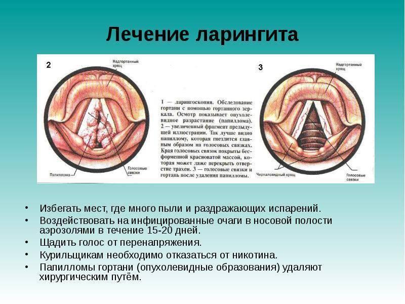 Ларингит у взрослых: симптомы заболевания