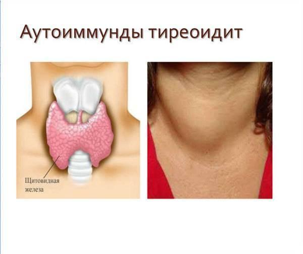 щитовидная железа тиреоидит