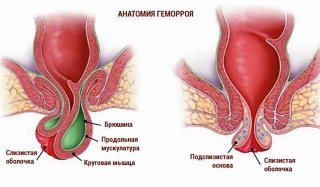 Лечение геморроя при обострении
