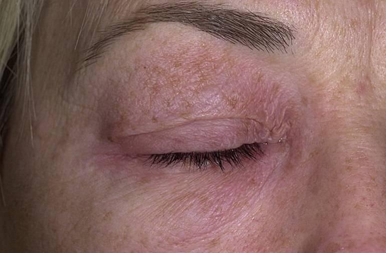 Лечение нейродермита у взрослых и симптомы, фото