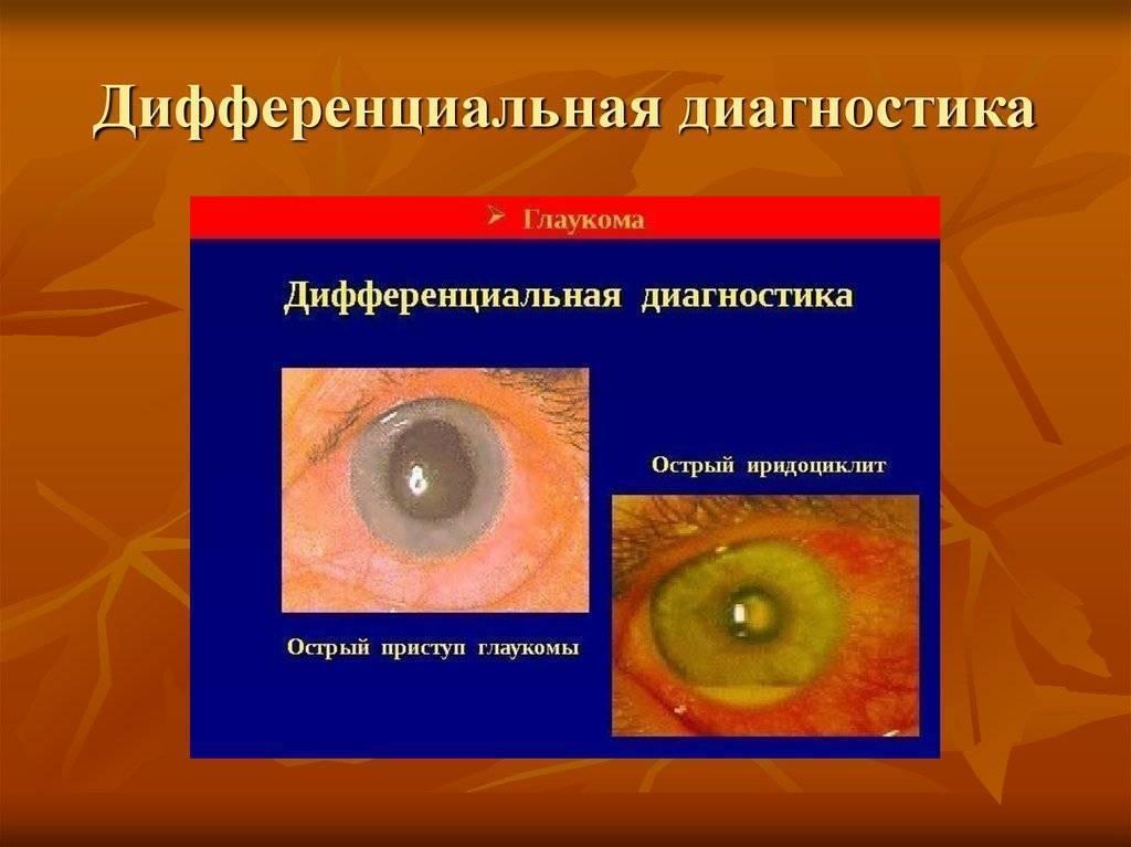 Возможно ли сохранить зрение после острого приступа глаукомы и чем экстренно снять симптомы