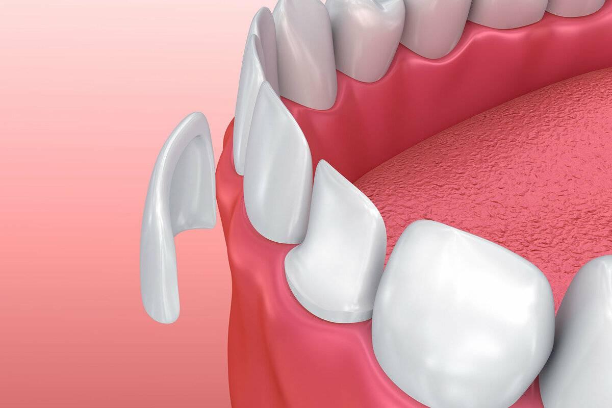 Виниры на зубы – что это такое? реставрация винирами