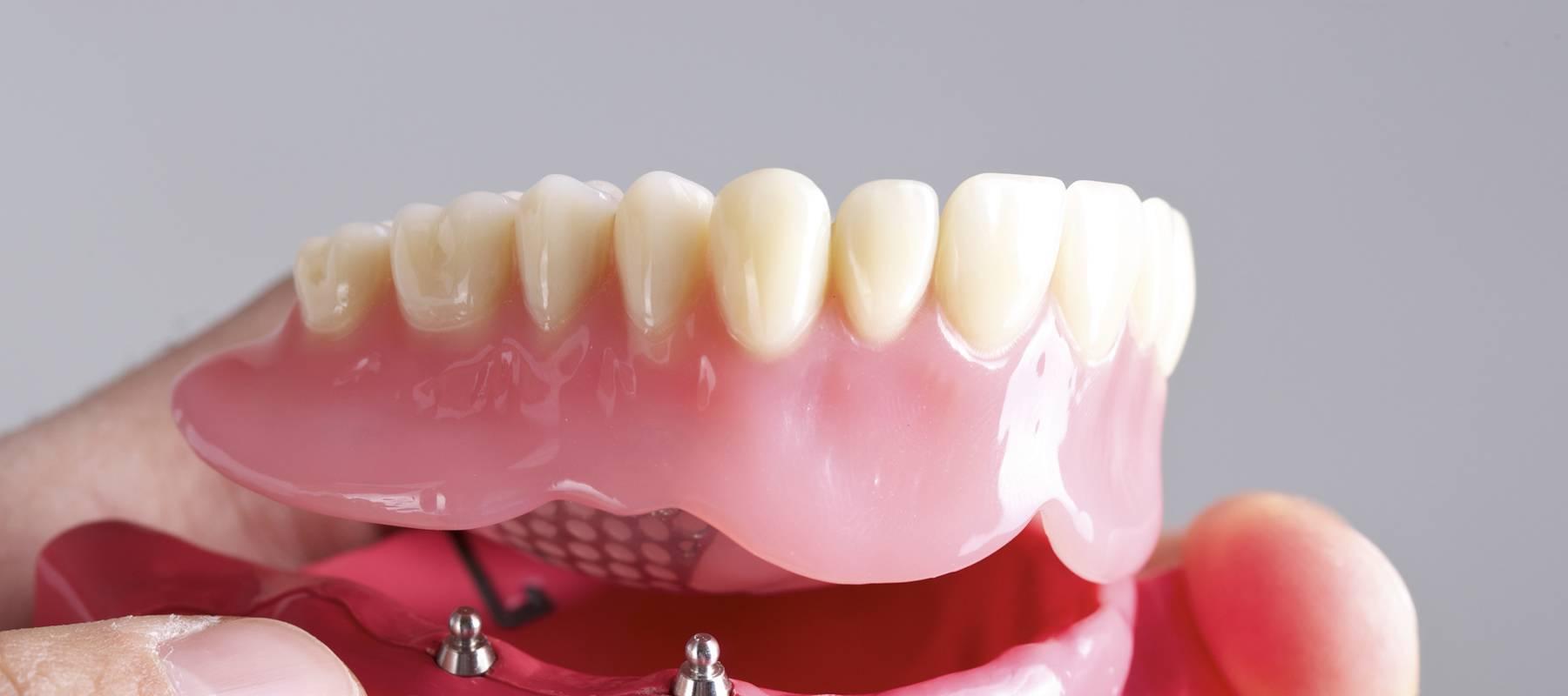 Протезирование зубов, виды