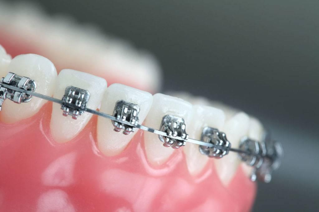 Этапы ортодонтического лечения в клинике «орто-артель»