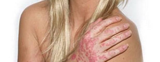 Дерматит заразен или нет — передается ли от человека к человеку