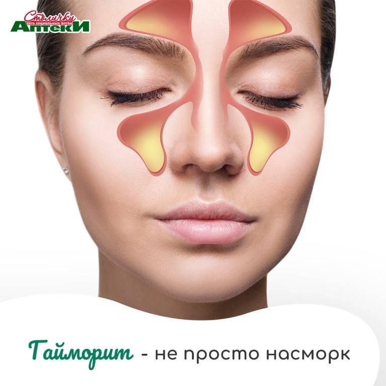гайморит без выделений из носа