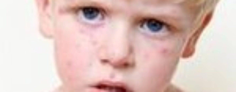 Герпес у детей: симптомы и лечение инфекции во рту, на лице, типы и опоясывающая форма, инфекционный герпес у маленьких детей